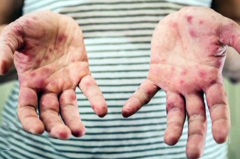 EUA registra su segundo mayor brote de sarampión desde el 2000