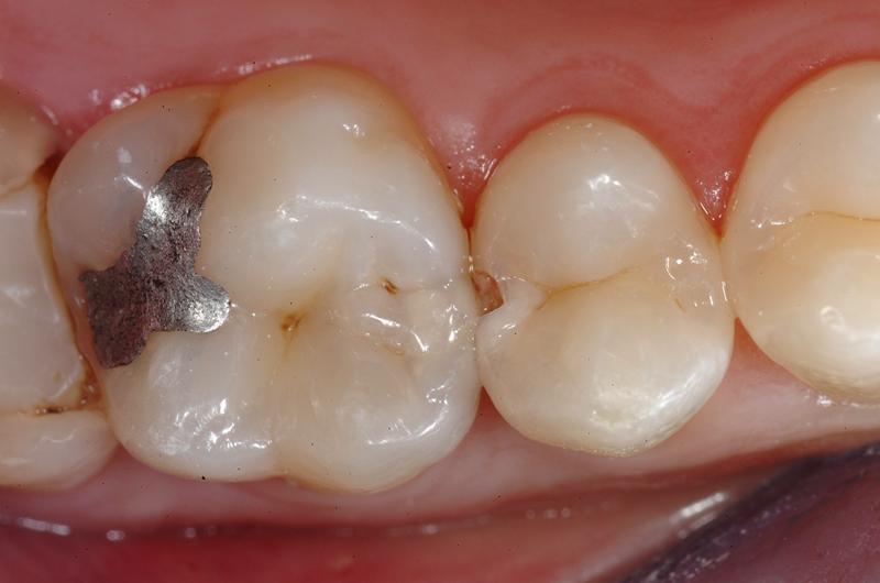 Caries, la principal causa de dolor en los dientes