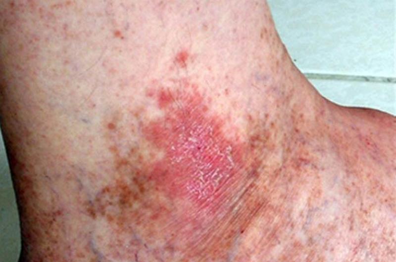 Mexicanos tienen alta susceptibilidad a padecer cáncer de piel: experto