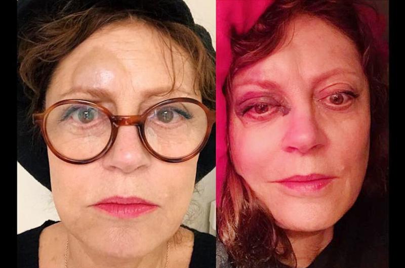 Sufrió Susan Sarandon conmoción cerebral tras caída