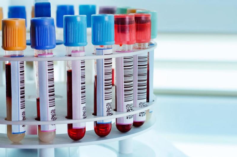 Seguro Social en BC resalta importancia de los análisis de laboratorio